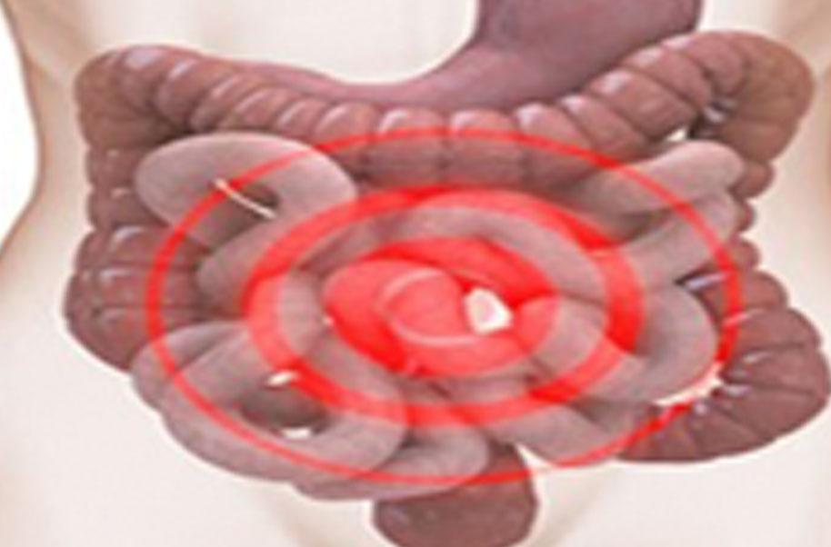 Fourth Stomach Disease (Abdominal Pain)