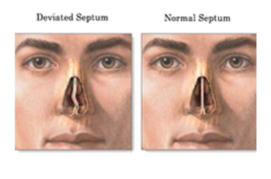 Deviated Septum (Crooked Nose)