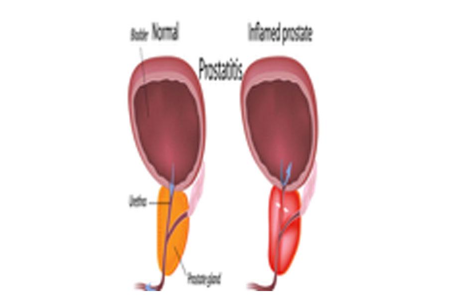 A prosztatitis veszélyes krónikus számú prostatitis Mi ez az