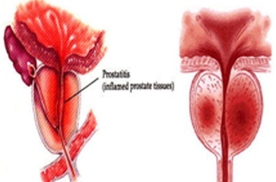 asymptomatic inflammatory prostatitis